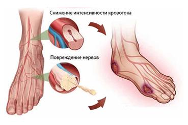 перевязка после удаления ногтя